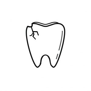 Louisville KY Endodontist | I Chipped a Tooth! What Can I Do?